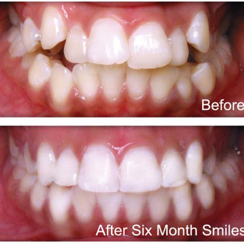 کجی دندان ها