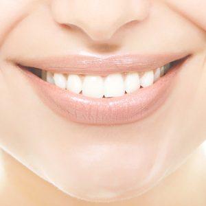 پوسیدگی دندان ها